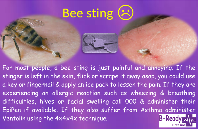 B-Ready First Aid info about bee stings