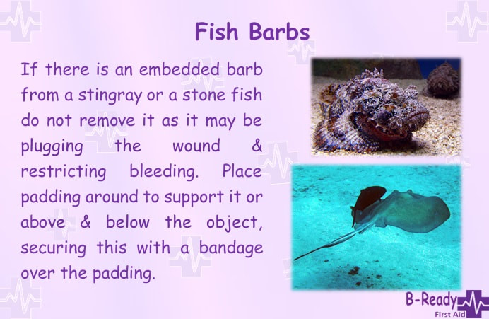 B-Ready First Aid info about fish barbs