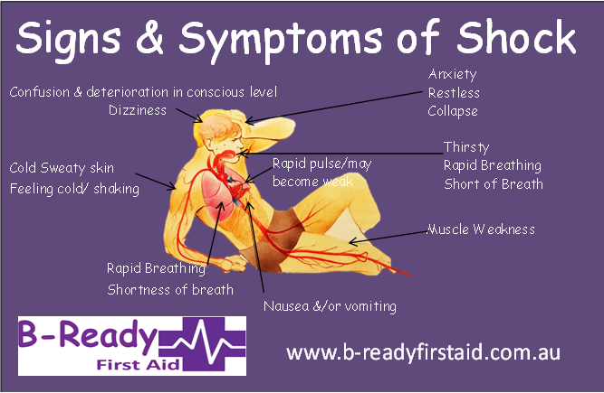 Signs of Shock by B-Ready First Aid