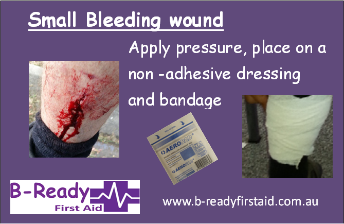 Minor bleeding wound by B-Ready First Aid